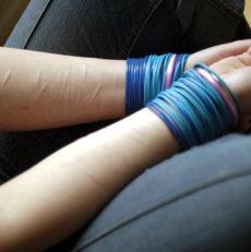 Automutilação e o conceito de parassuicídio